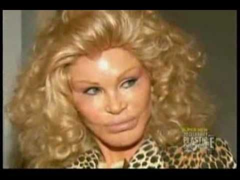 How Much Plastic Surgery did Cat Lady Jocelyn Wildenstein Have Done?