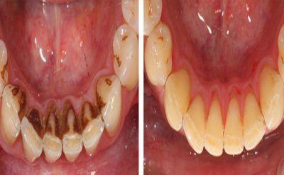 Plus besoin d'aller chez le dentiste ! Mettez juste CECI dans votre dent … C'est la magie de la Nature !<br>http://www.astucesnaturelles.net/plus-besoin-daller-chez-le-dentiste-mettez-juste-ceci-dans-votre-dent-cest-la-magie-de-la-nature/