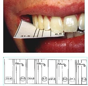 The golden proportion in teeth!: _ the ratio is always the same see www.goldenmeangauge.co.uk for more details and information.