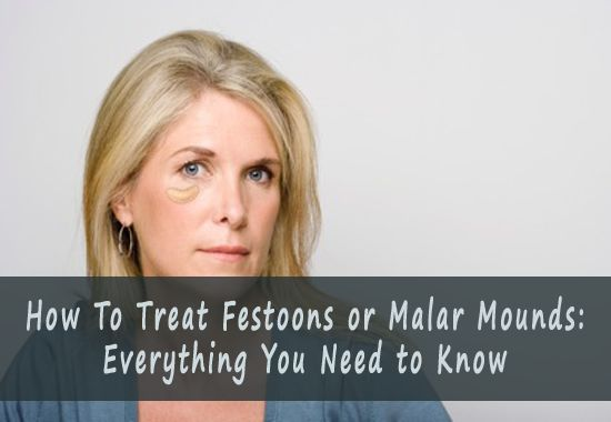 how to get rid of malar bags naturally