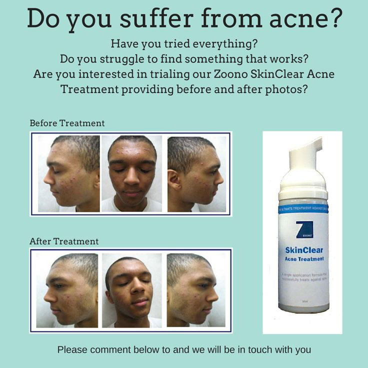 Zoono SkinClear Acne Treatment www.vipcare.co.nz