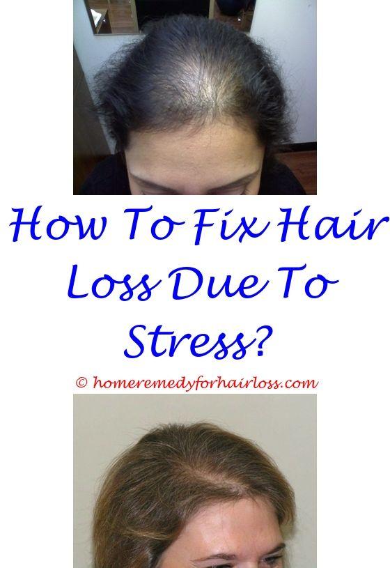 patented hair loss - low thyroid hair loss pattern.russian blue cat hair loss can women take propecia for hair loss best probiotics for hair loss 6533229006