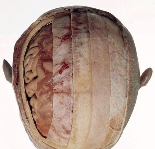 (From right to left): Scalp - Periosteum - Bone - Dura Mater - Arachnoid Mater - Pia Mater - Brain Tissue