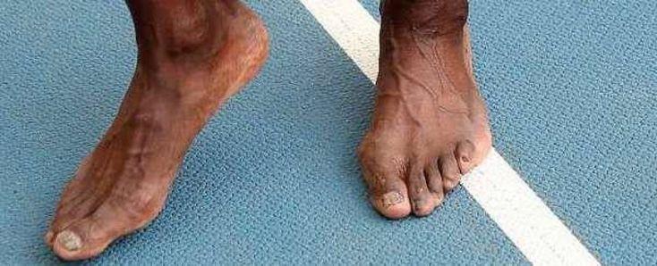 A piedi nudi nel parco (dello stadio Luzhniki). Forse i piedi di un viticoltore che ha appena pestato l'uva? No. Sono i piedi più veloci del mondo che hanno appena vinto la loro terza medaglia d'oro a Mosca: i piedi di Usain Bolt...