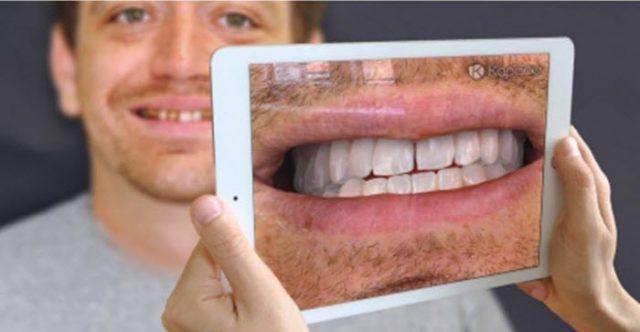 Realidad Aumentada mejorará el proceso de reconstrucción dental