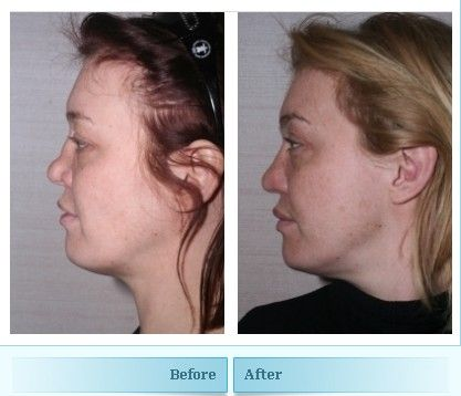 Love facial reconstructive surgeons thats not