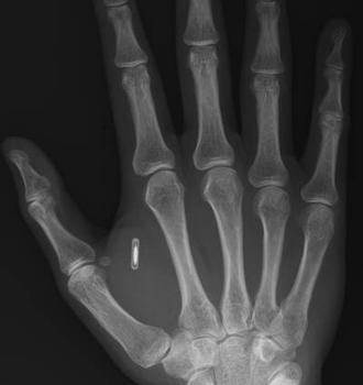 RFID microchip was in the healthcare bill HR 3200 but did not pass. Bill HR 3590 passed without the mandate. But it is their agenda to mandate that everyone be chipped in their flesh as soon as possible. Replacing the product bar code with the RFID chip world wide is happening and injected into the flesh as our pets can be.  Connected to our bank accounts and all medical & personal information.  Know the truth before it happens to you. I read the bill and the research.  YouTube RFID…