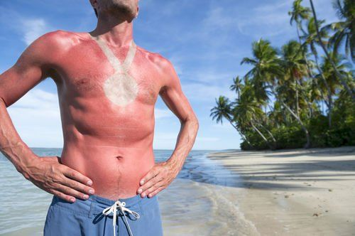 The Stir-6 Weird Sunburn Cures Using Things You Have Around the House