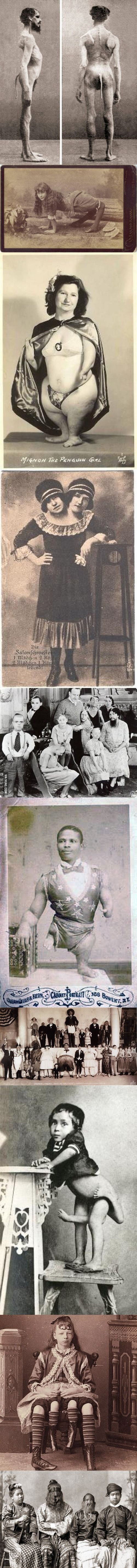 Freak Show- the first picture is actually true, everyone technically has a tail in rare occasions it fully forms. These are all true defects of life.: