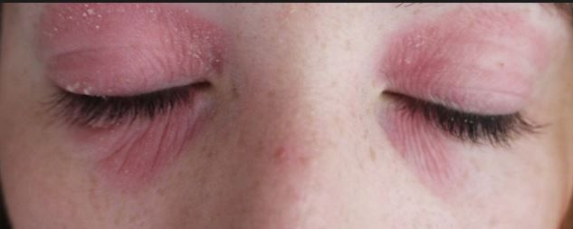 Eczema on Eyelids, Under Eyelids, Around Eyes, Causes, Treatment ...