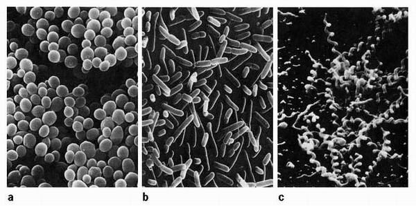 Basis stof 2, Het rijk van de Bacterien. Bacterien zijn eencellig: ze bestaan uit een enkele cel. Een bacterie heeft geen celkern en geen bladgroenkorrels in de cel. Wel zit er een celwand om de cel. Bacterien zijn zo klein dat je ze met een gewone microscoop niet goed kunt zien. Zelfs bij de sterkste vergroting zie je ze alleen als stipjes of streepjes.  Bron BVJ TB 1a Blz 82