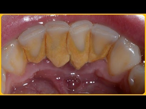 How to Remove Dental Plaque 5 Minutes Naturally Without Going To The Dentist - YouTube