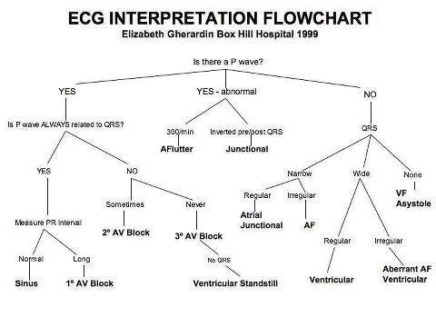 ECGs Flowchart, Medical and Easy - flow chart printable