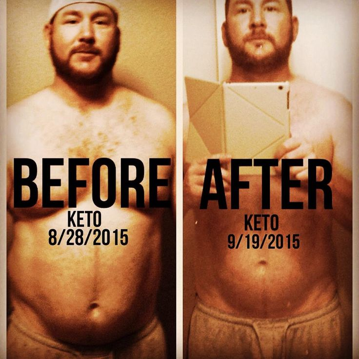 My Ketogenic Diet Success Story – How I Lost 45 Pounds Eating Bacon