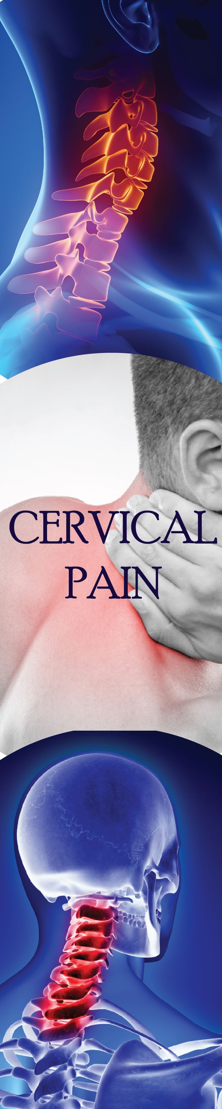 Understanding Cervical Radiculopathy: Symptoms and Treatment
