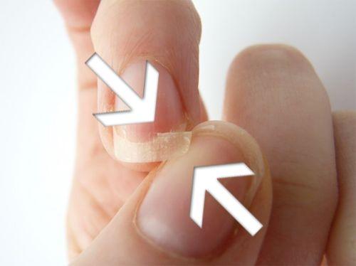 Remédios Caseiros para fortalecer e endurecer naturalmente unhas quebradiças