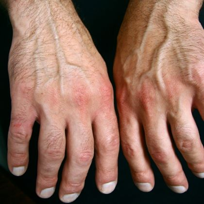 SIGNS AND SYMPTOMS OF SERONEGATIVE ARTHRITIS