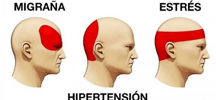 Aprende a identificar bien tu dolor de cabeza y a librarte del mismo en pocos minutos con estos 6 puntos específicos.