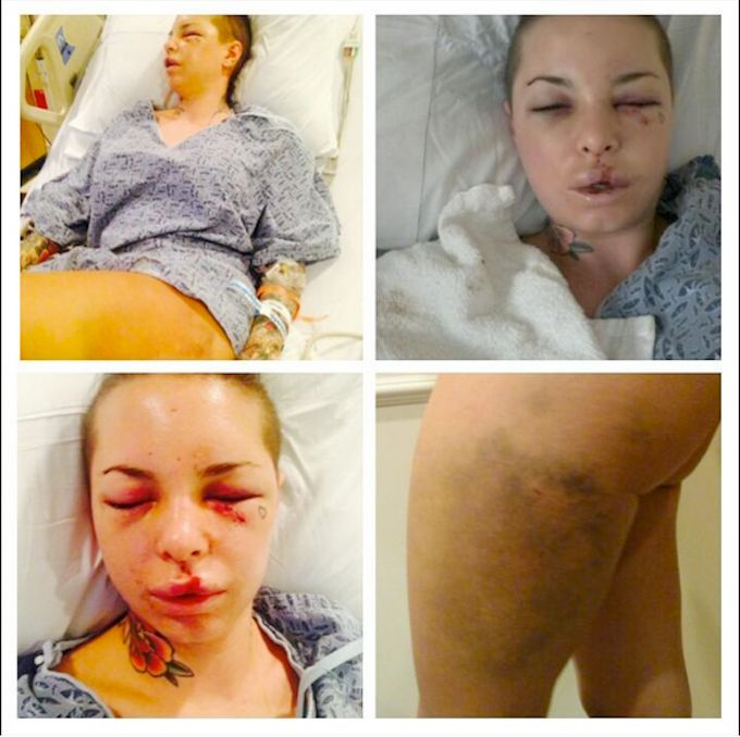 "Christy Mack... Beaten by ex boyfriend MMA ""War Horse"".   Article.. From in touch"