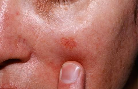 17 Best Images About Skin Cancer On Pinterest The Two