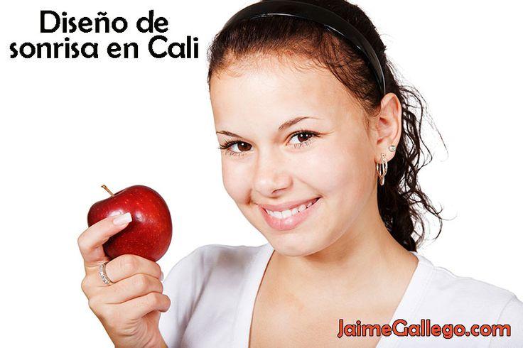 Diseño de sonrisa en Cali. Ortodoncia en Cali #Diseñodesonrisa #Ortodoncia