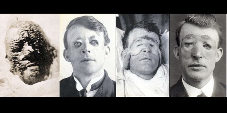 Walter Yeo was the first man to undergo plastic surgery. Walter sustained terrifying facial injuries including the loss of his upper and lower eyelids while manning the guns aboard HMS Warspite in 1916 during the Battle of Jutland. Surgeon Sir Harold Gillies used a type of skin grafting technique called tubed pedicle to treat Walter Yeo.