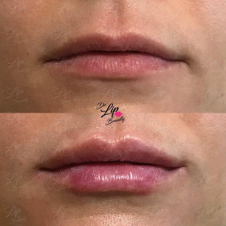 💋TOUCH LIP© | 🖇 Ridefinizione delle LABBRA con FILLER.  💎 Aumento leggero del labbro superiore nella sua porzione centrale. Correzione di live asimmetria dei bordi superiori. Stondatura e leggero aumento del labbro inferiore. Lieve correzione delle commissure. Lieve correzione delle porzioni laterali. 💎  🎗#LABBRAdiCLASSE🎗 | Filler Labbra Acido Ialuronico | #eleganza #lipclass #labbranaturali #bellezzasicura
