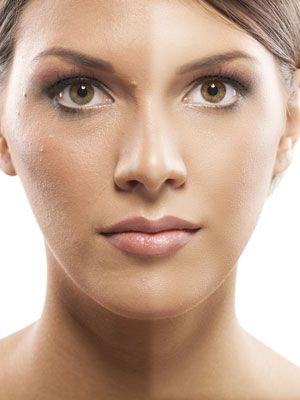 Los granitos en el rostro son propios de la etapa de la pubertad, sin embargo, también aparecen en adultos. No los pases por alto, ya que …