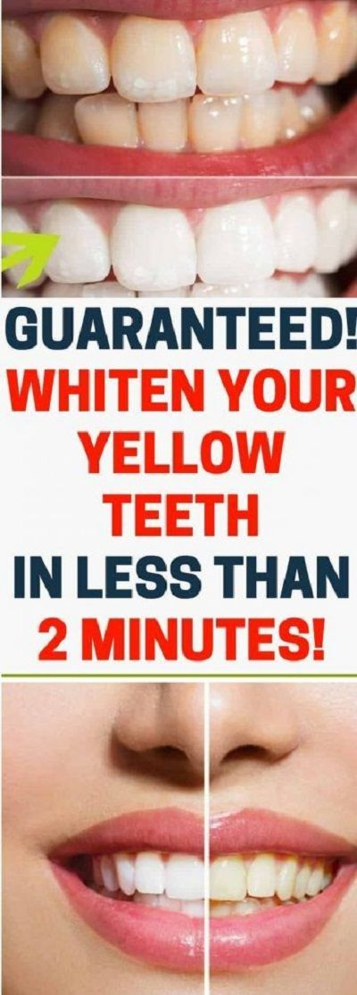[VIDEO] Guaranteed! Whiten Yellow Teeth in Less Than 2 Minutes