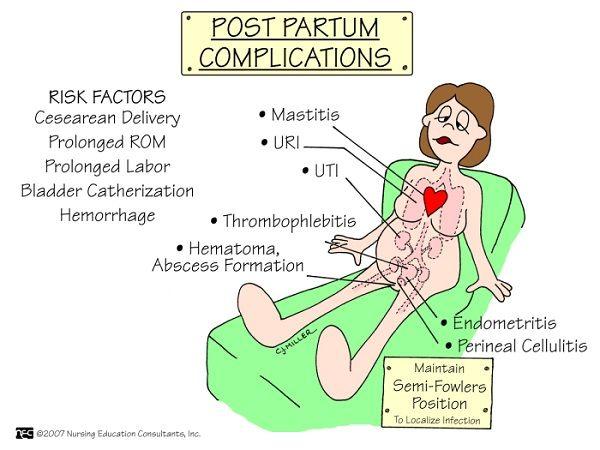 Postpartum-Complications-Nursing Mnemonics. See more: http://www.nursebuff.com/nursing-mnemonics-obstetrics-and-newborn-care/