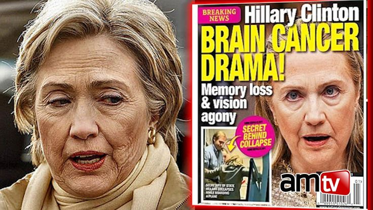 A VIRAL POST on Reddit theorizes that Hillary Clinton may have brain damage…