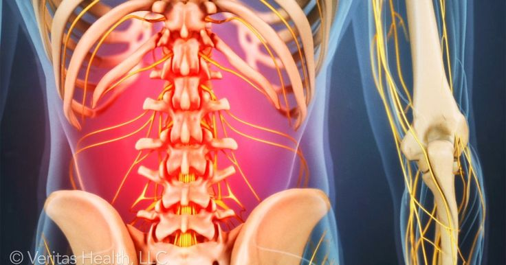 Lower back strain is caused by damage to the muscles and ligaments of the back. Learn about muscle anatomy and the symptoms of lower back strain.