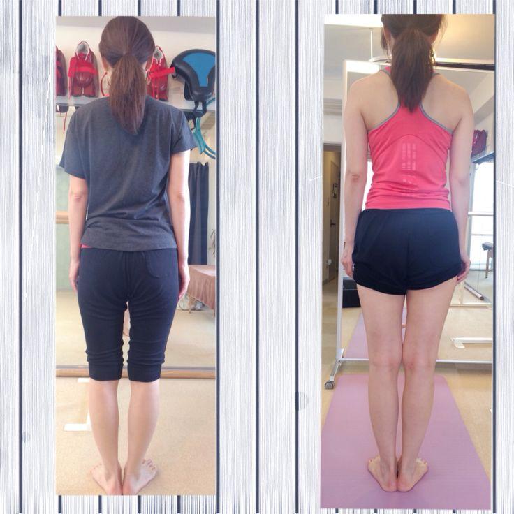腿の張り、O脚、1度の施術で右の様に。動きのら癖を直して美しいボディラインに。