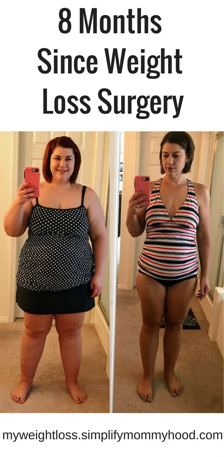 25 Best Not So Simple Weight Loss Images On Pinterest Weight Loss