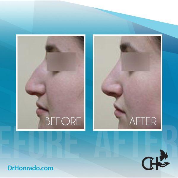 Female nose side