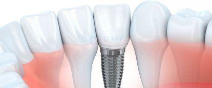 Implantologia-dental-en-valencia
