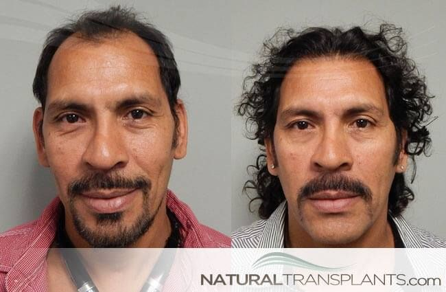 Cost of FUE Hair Transplant | Hair Transplant Before and After