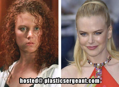 Nicole Kidman's Cheek Implants, nose job, lip injections, eyebrow lift
