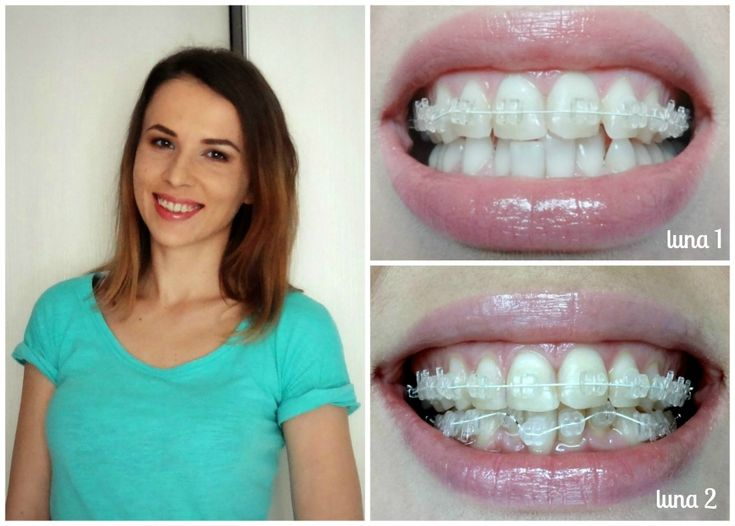 before and first month photos - Radiance Plus Clear Sapphire Braces by American Orthodontics