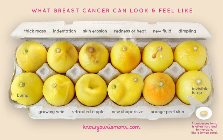What Breast Cancer Can Look and Feel Like Photo | POPSUGAR Fitness UK