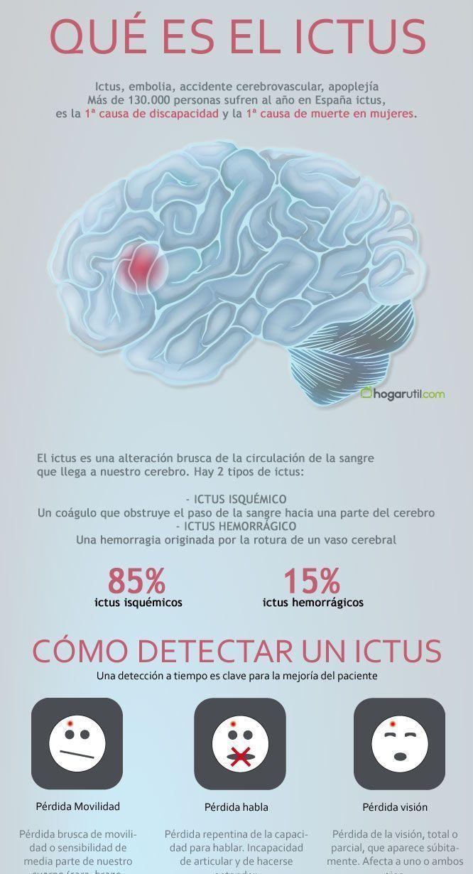 Un ictuscerebral, también conocido como accidente cerebrovascular o ACV, se produce cuando una parte del cerebro pierde su suministro de sangre, lo que produce que la parte del cuerpo asociada a esas células cerebrales deje de funcionar. Esta pérdida en elsuministro de sangre puede ser isquémica,porla falta de flujo sanguíneo, o hemorrágica, lo que se …