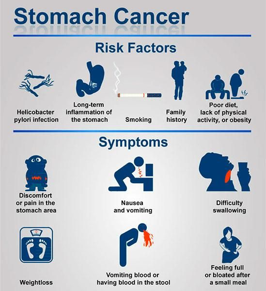 Everything you need to know about stomach cancer