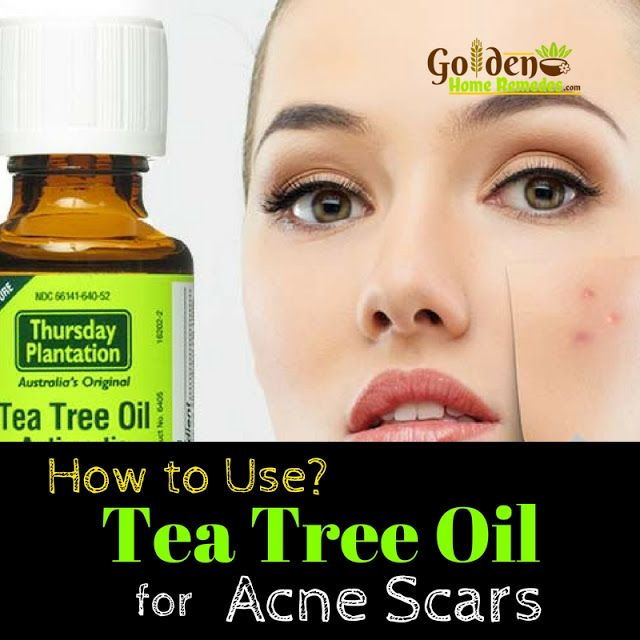 Tea Tree Oil For Acne Scars: How To Use Tea Tree Oil For Acne Scars, Remove Acne Scars Fast!
