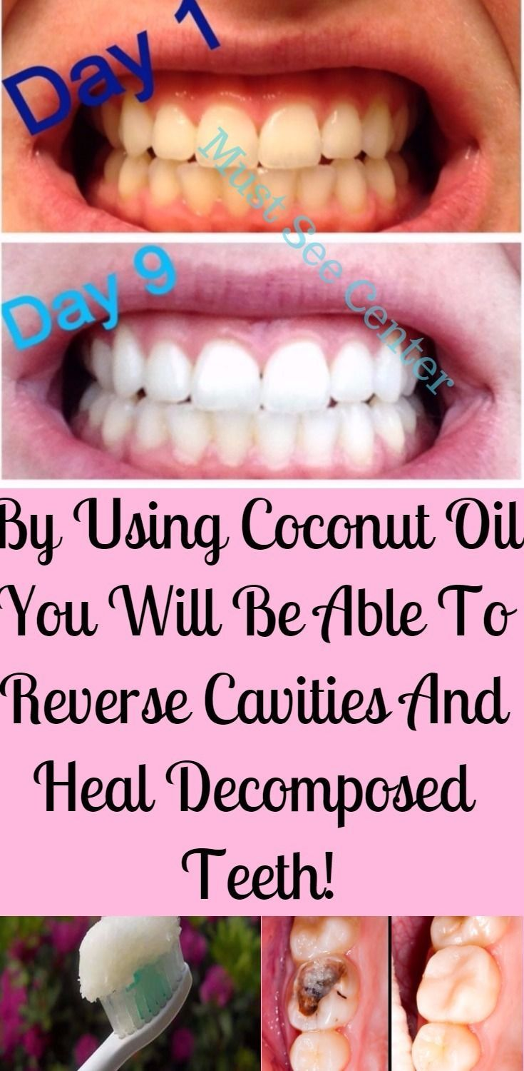 You are surely familiar with the countless health benefits of coconut oil, but you might now be aware of the fact that this oil is