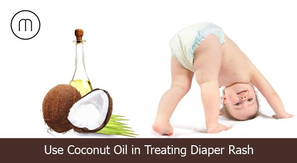 Tips to use coconut oil to treat kids diaper rash problems - http://goo.gl/ymPJ7t