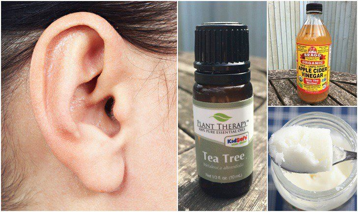 "Can We Send You Our Free Special Report: ""100 Ways To Use Essential Oils To Change Your Life""?   Many people practice ear wax removal as part of their regular hygiene routine, but unfortunately, most tend to use cotton swabs or Q-tips, bobby pins, or other objects in an attempt to get to it and clean out the excess ear wax. When done incorrectly, that can…   [read more]"