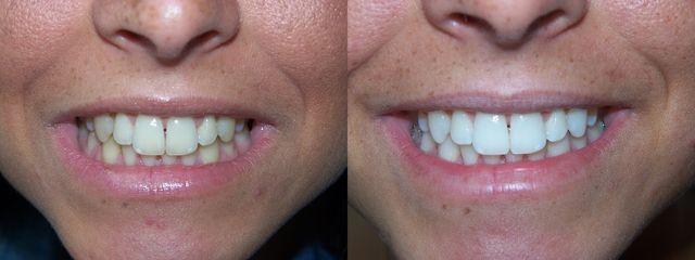 Dents blanches et un sourire éclatant: trouvez les meilleurs produits de blanchiment, comparez les prix de blanchiment des dents. http://blanchimentdesdentsrapide.com/