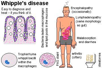 Whipple disease - Google Search