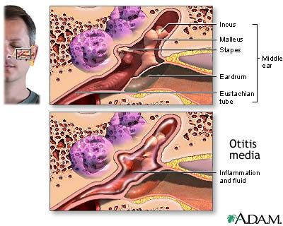 Otitis media with effusion - An inflammation and/or infection of the middle ear. Acute otitis media (acute ear infection) occurs when there is bacterial or viral infection of the fluid of the middle ear, which causes production of fluid or pus. Chronic otitis media occurs when the eustachian tube becomes blocked repeatedly due to allergies, multiple infections, ear trauma, or swelling of the adenoids.