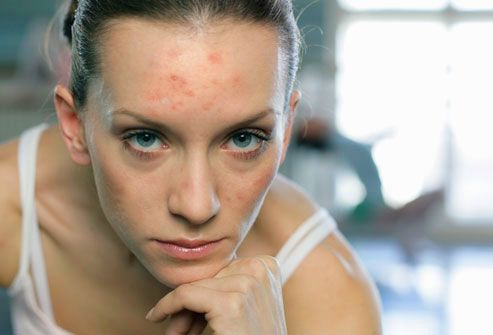 Aging Skin and Acne: Products to Treat Adult Acne